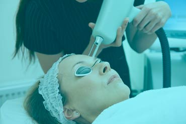 medical spa performing erbium laser resurfacing of a female client's face
