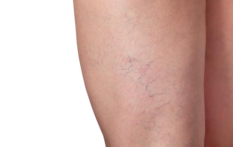 Spider veins on thigh can be treated with sclerotherapy