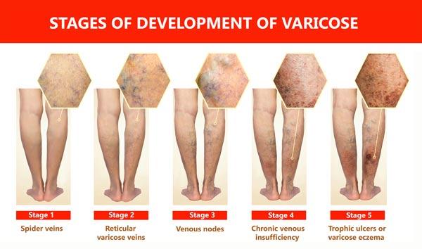 Spider Veins versus Varicose Vein Comparison