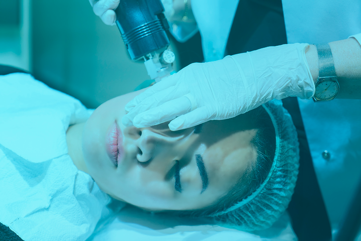 Micro-needling treatment to keep your skin youthful