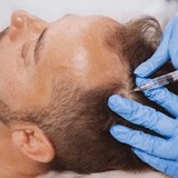 PRP Hair Injection