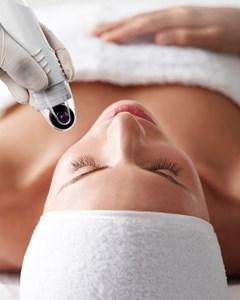 DermaFrac microneedling treatment