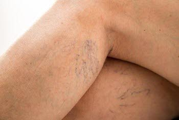 Spider veins most commonly affect legs due to risk factors which can be avoided