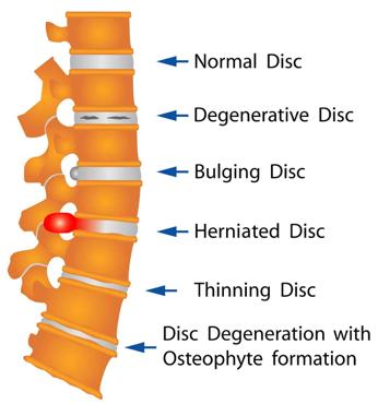 spine2