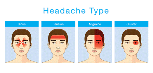Headache Type Graphic