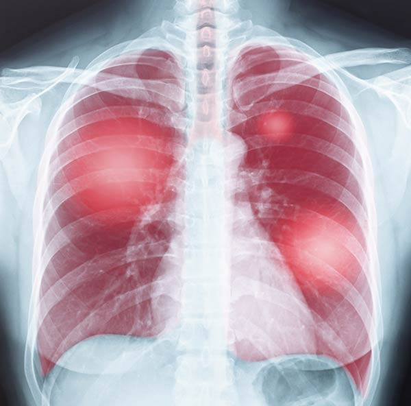 lung chest xray illustration